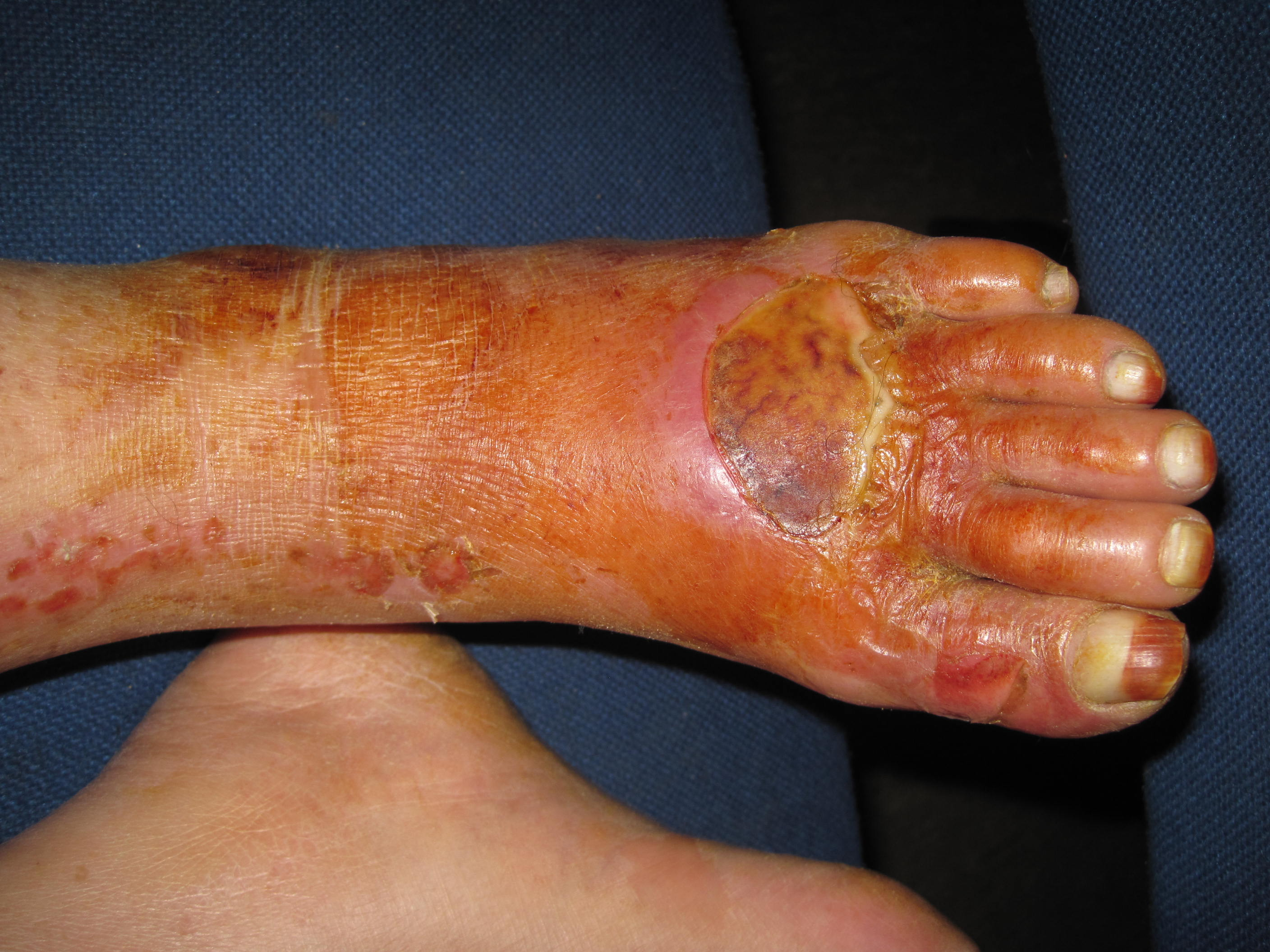 Diabetic Foot Infections In Turkey Handbook Of Lower Extremity